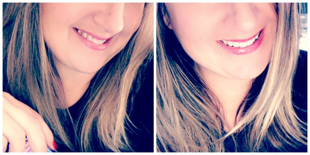 before and after crest 3D Whitestrips Challenge Photo